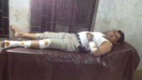 কোম্পানীগঞ্জে পুলিশ-ডাকাত গুলি বিনিময় ।। ওসি সহ ৫ পুলিশ সদস্য আহত